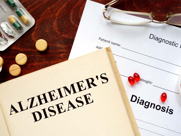 Alzheimer's disease is the most common cause of dementia in the UK.
