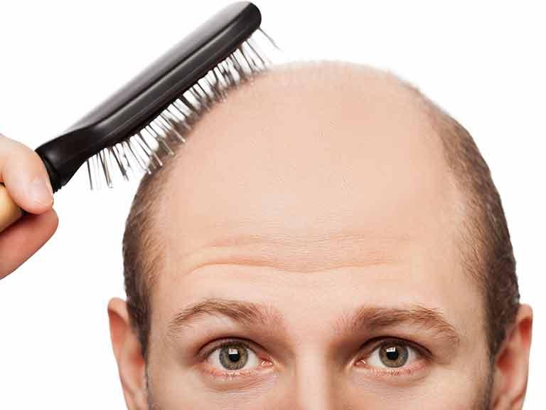 Will my son-in-law go bald? - Saga