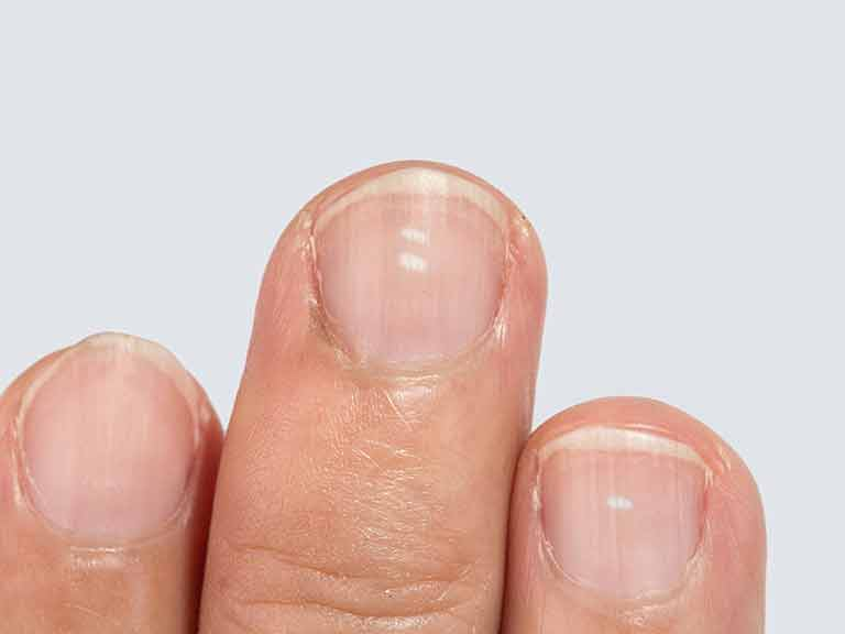 White flecks in nails
