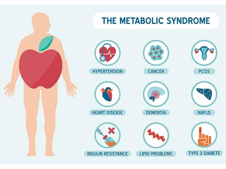 Nueve factor me gusta de Acelerar metabolismo sin embargo  3 es mi favorito