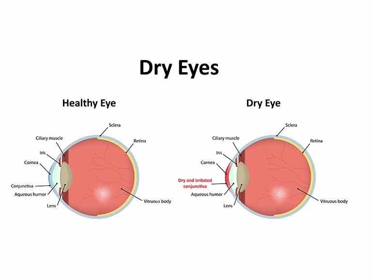 Diagram Of A Dry Eye Great Design Of Wiring Diagram