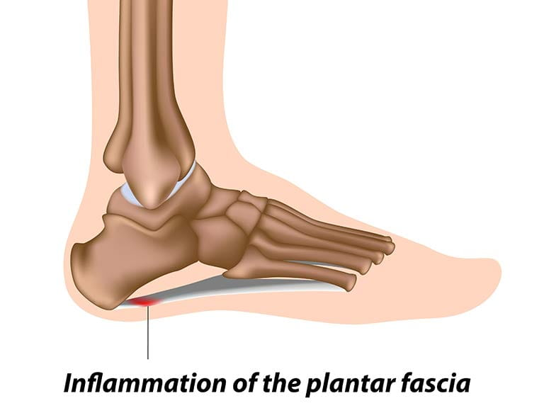 Extracorporeal shockwave therapy is a new treatment for plantar fasciitis.